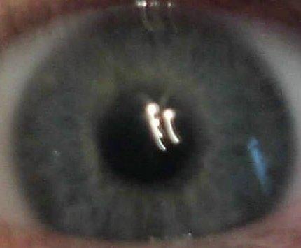 Eye_4